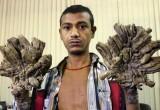Уникальный случай: мужчину избавили от «рук-деревьев»