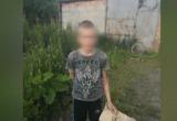 11-летнего мальчика подожгли другие дети: их не накажут (видео)
