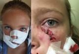 Такса «порвала» лицо 8-летней девочке