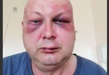 Минский милиционер избил мужчину и пошел в кочегары, чтобы не платить компенсацию
