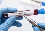 В Бресте всем желающим стали делать платные тесты на коронавирус